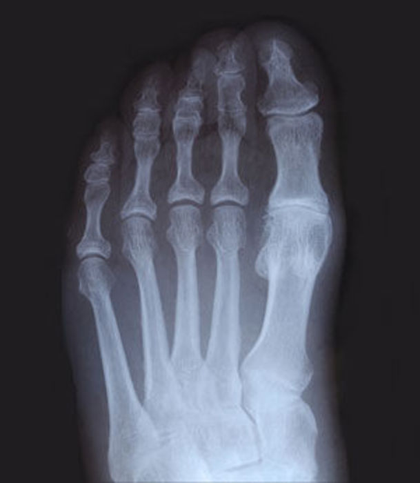 ToesXray3.jpg - small
